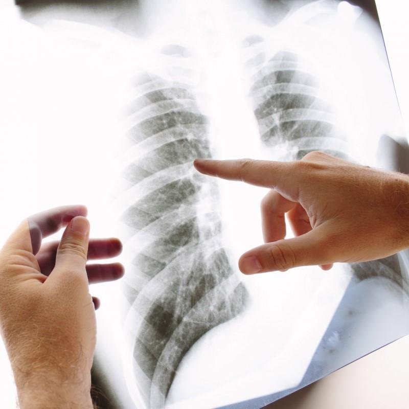 呼吸器診療